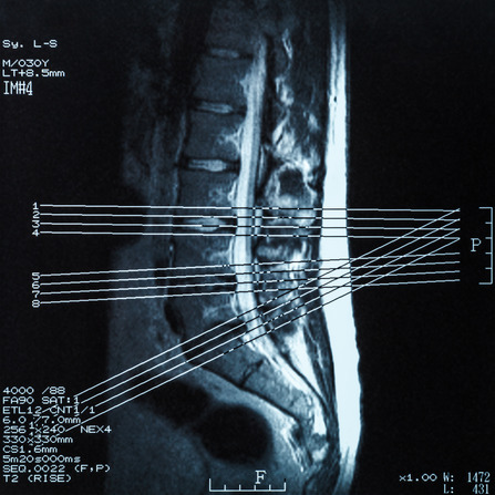 MRI image before MUA