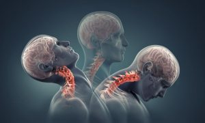 Movement of neck during an accident
